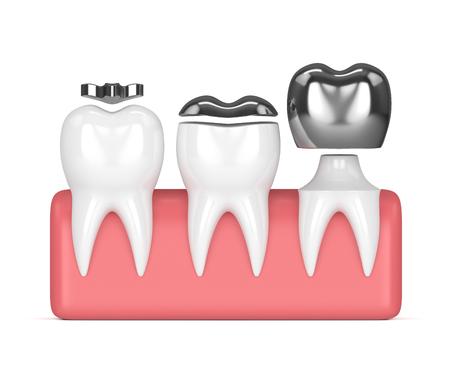 3d rendono dei denti con l'amalgama dell'intarsio, della sovrapposizione e della corona che riempie sopra il fondo bianco Archivio Fotografico - 96155243