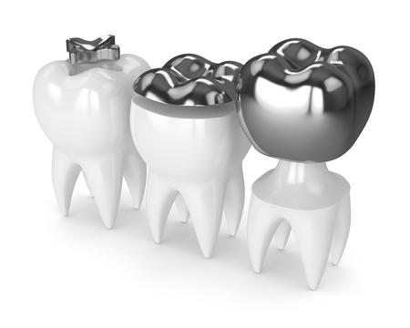 白い背景の上にインレイ、オンレイとクラウンアマルガム充填を持つ歯の3Dレンダリング 写真素材 - 96123959
