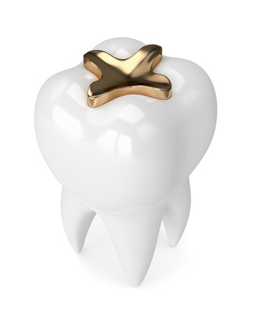 3d render of tooth with dental golden inlay filling over white background 스톡 콘텐츠