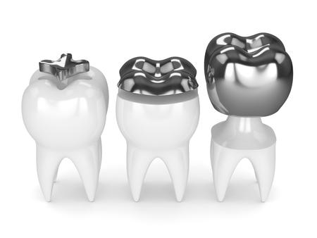 흰색 배경 위에 속지, onlay 및 크라운 아말감 충전 치아의 3d 렌더링 스톡 콘텐츠 - 96123954