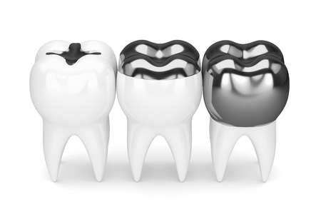 3d render of teeth with inlay, onlay and crown amalgam filling over white background