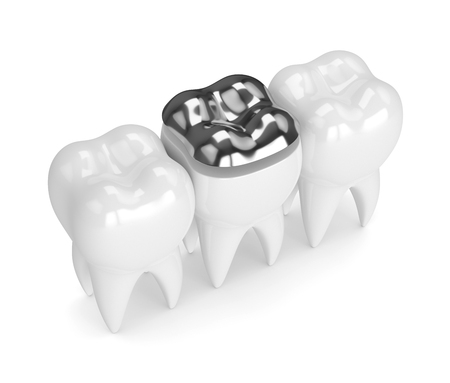 3d render of teeth with dental onlay amalgam filling over white background