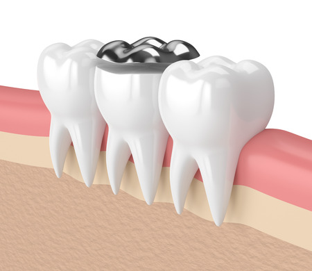 3d render of teeth with dental onlay amalgam filling in gums