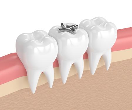 3d render of teeth with dental amalgam filling in gums