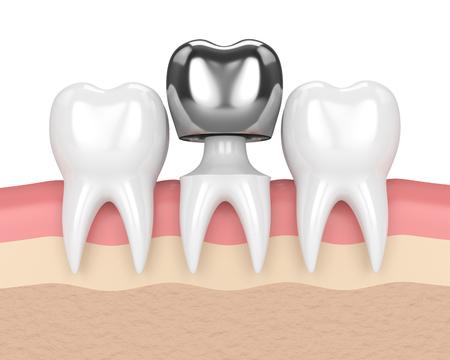 3d render of teeth with dental crown amalgam filling in gums Stock Photo