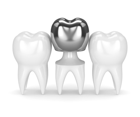 3d render of teeth with dental crown amalgam filling over white background