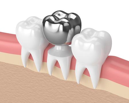 3d render of teeth with dental crown amalgam filling in gums