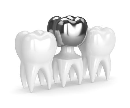 3d render of teeth with dental crown amalgam filling over white background