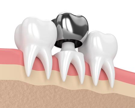 3d render of teeth with dental crown amalgam filling in gums Banco de Imagens - 96642966