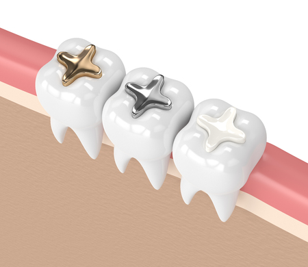 3d render of teeth with gold, amalgam and composite inlay dental filling in gums 版權商用圖片 - 96593837