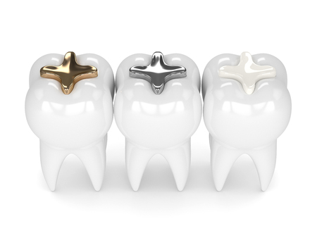 3d render of teeth with gold, amalgam and composite inlay dental filling over white background Archivio Fotografico