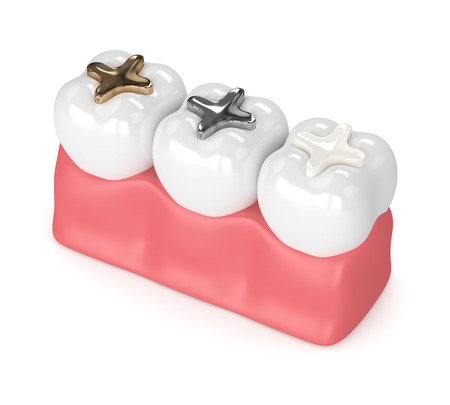 3d render of teeth with gold, amalgam and composite inlay dental filling over white background Stockfoto