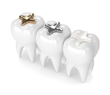 3d render of teeth with gold, amalgam and composite inlay dental filling over white background 스톡 콘텐츠