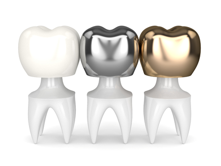 3d render of teeth with gold, amalgam and composite dental crown over white background Stock Photo