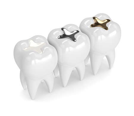 3d render of teeth with gold, amalgam and composite inlay dental filling over white background Standard-Bild