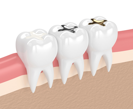 3d render of teeth with gold, amalgam and composite inlay dental filling in gums Stock Photo
