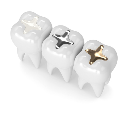 3d render of teeth with gold, amalgam and composite inlay dental filling over white background Фото со стока