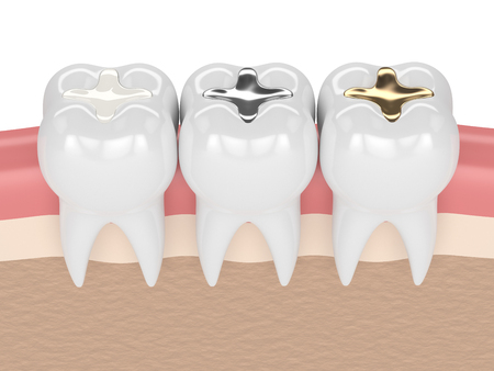 3d render of teeth with gold, amalgam and composite inlay dental filling in gums Stok Fotoğraf