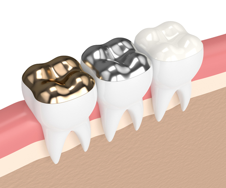 3d render of teeth with gold, amalgam and composite onlay dental filling in gums Фото со стока