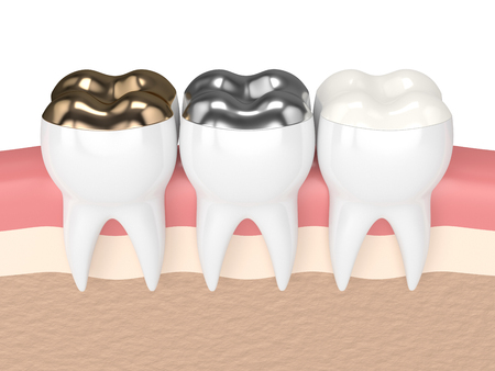 3d render of teeth with gold, amalgam and composite onlay dental filling in gums 스톡 콘텐츠