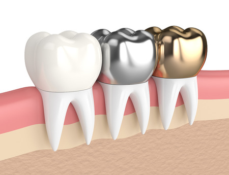 3d render of teeth with gold, amalgam and composite dental crown in gums