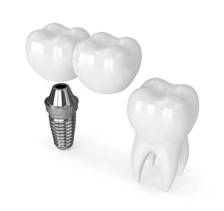 3d render of implant with dental cantilever bridge and healthy tooth isolated over white background Фото со стока
