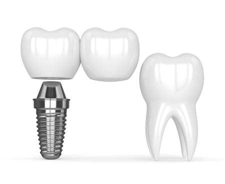 3d render of implant with dental cantilever bridge and healthy tooth isolated over white background Stock Photo