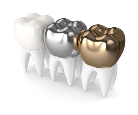 3d render of teeth with gold, amalgam and composite dental crown over white background 스톡 콘텐츠