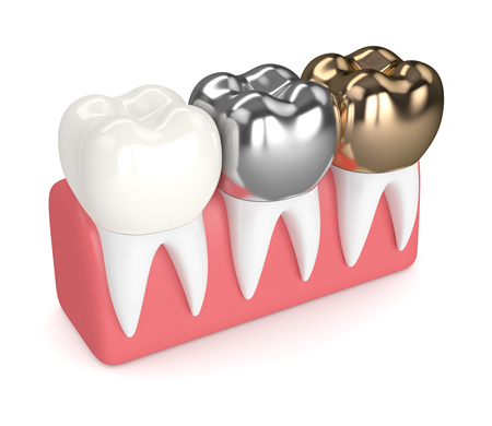 3d render of teeth with gold, amalgam and composite dental crown in gums over white background Stock Photo