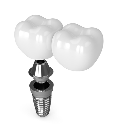 3d render of implant with dental cantilever bridge isolated over white background