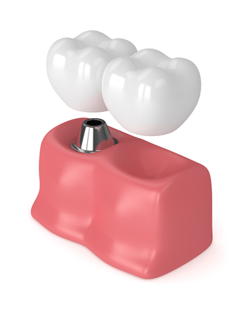 3d render of implant with dental cantilever bridge in gums  isolated over white background