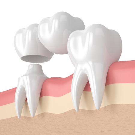 3d render of teeth with dental cantilever bridge in gums