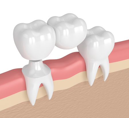 3d render of teeth with dental cantilever bridge in gums  Фото со стока