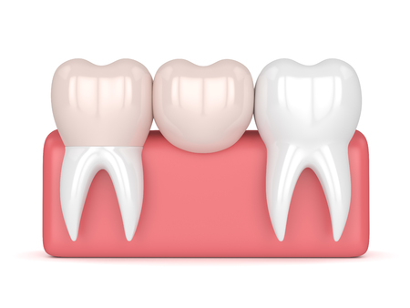 3d render of teeth with dental cantilever bridge in gums  isolated over white background