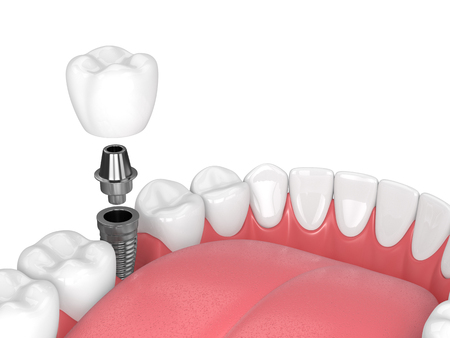 3d render of jaw with teeth and dental molar implant over white background Stockfoto