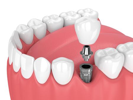 3d de mandíbula con dientes y implante dental sobre fondo blanco