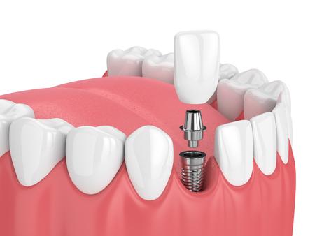 3d übertragen vom Kiefer mit den Zähnen und zahnmedizinischem Schneidezahnimplantat über weißem Hintergrund Standard-Bild