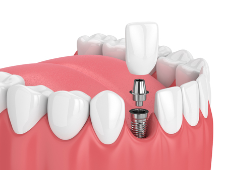 3d render of jaw with teeth and dental incisor implant over white background Standard-Bild - 97150881