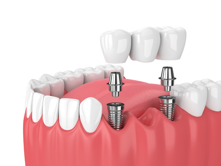 3d render of jaw and implants with dental bridge over white background Foto de archivo - 97813248