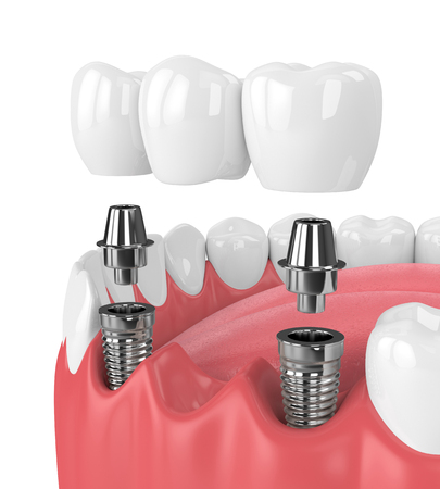 3d render of jaw and implants with dental bridge over white background