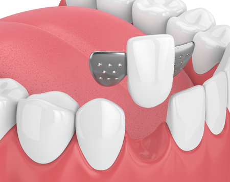 3d render of jaw with teeth and maryland bridge  in gums  isolated over white background 版權商用圖片