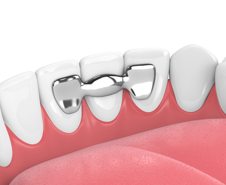 3d render of jaw with teeth and maryland bridge in gums  isolated over white background Zdjęcie Seryjne