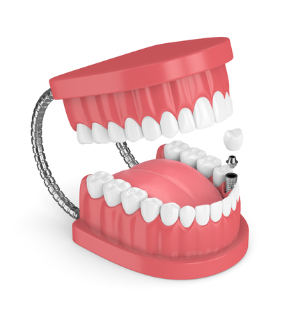3d render of jaw with teeth and dental premolar implant over white background