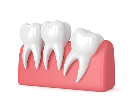 3d render of teeth with wisdom distal impaction over white background. Concept of different types of wisdom teeth impactions. 스톡 콘텐츠