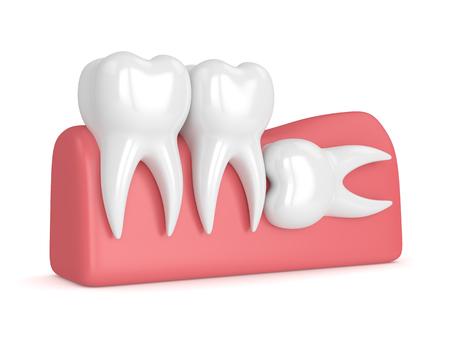 3d rendern von Zähnen mit horizontaler Impaktion der Weisheit über weißem Hintergrund. Konzept der verschiedenen Arten von Weisheitszahnstörungen.