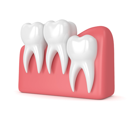 3d render of teeth with wisdom vertical impaction over white background. Concept of different types of wisdom teeth impactions.