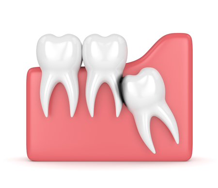 3d render of wisdom with erosion cavity. Concept of different types of wisdom teeth problems.