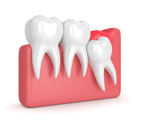 3d render of  wisdom mesial impaction with pericoronitis over white background. Concept of different types of wisdom teeth problems. Stock Photo