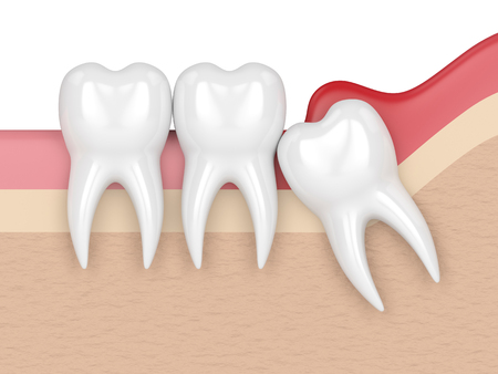 3d render of  wisdom mesial impaction with pericoronitis. Concept of different types of wisdom teeth problems. 스톡 콘텐츠