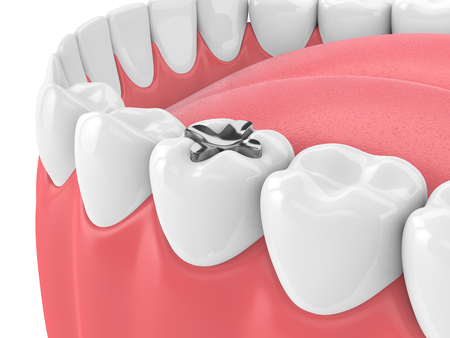 3d render of teeth with dental inlay amalgam over white background